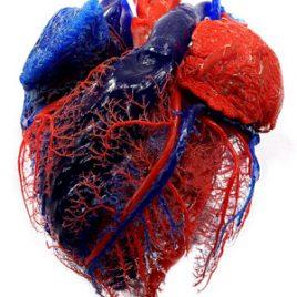 Gefäßversorgung Herz Präparat Druck